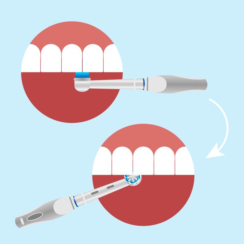 technika-mycia-zębów-szczoteczką-elektryczną